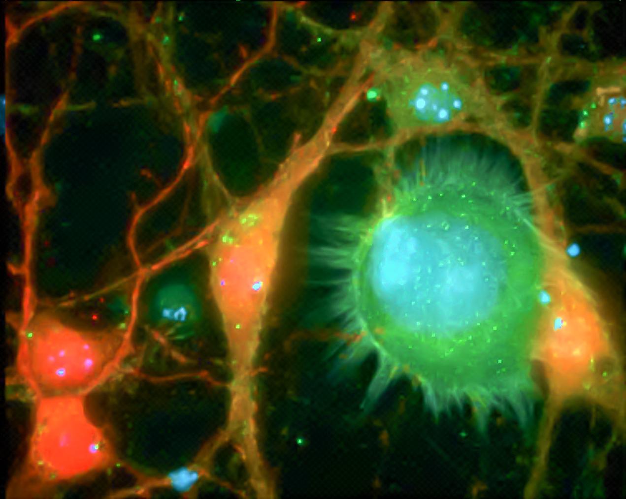 Metastatic brain cancer cells